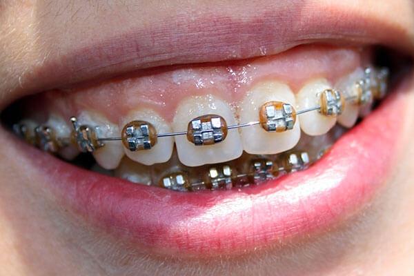 Metal braces to correct overbite